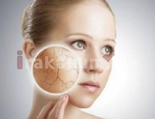 Ինչու է չորանում մաշկը․ գլխավոր պատճառները