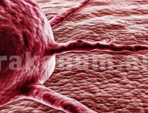 Հայաստանում քաղցկեղից տարեկան մահանում է շուրջ 5600 մարդ