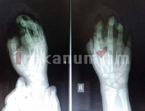 Պայթուցիկի հետեւանքով 10-ամյա երեխայի մատներն անդամահատվել են