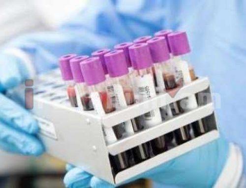 Ավստրալիայում 14 շաբաթվա ընթացքում կորոնավիրուսով վարակման դեպքերի ռեկորդային ցածր ցուցանիշ է գրանցվել