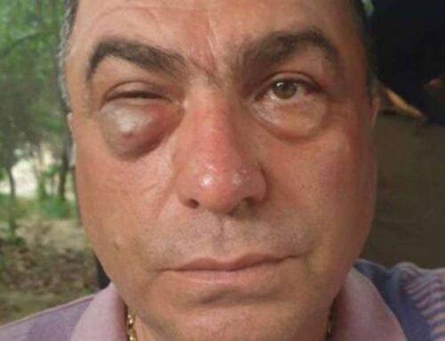 «Հայաստան» դաշինքի ներկայացուցչին ծեծել է բանգլադեշցի Կարենը՝ Եղեգնաձորի ոստիկանների հետ միասին
