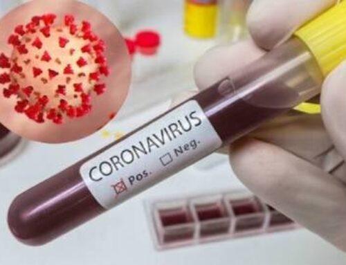 Հայաստանում հաստատվել է կորոնավիրուսով վարակվելու 88 նոր դեպք, մահացել է 1 մարդ
