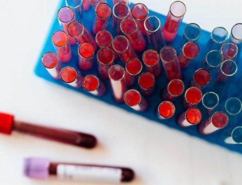 COVID-ի դեմ թեստերի գները ինչու՞ չէր էժանացվում մինչև հոկտեմբերի 1-ի ուժի մեջ մտնող կարգավորումները․ պարզաբանում